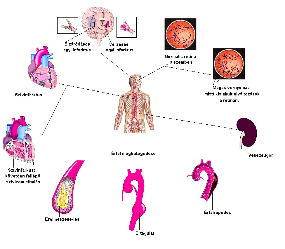 az izolált magas vérnyomás okai hány éves korban van magas vérnyomás