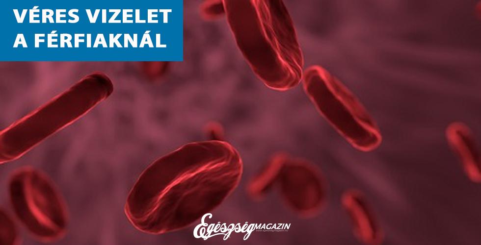cikkek véres vizelet témában   BENU Gyógyszertárak