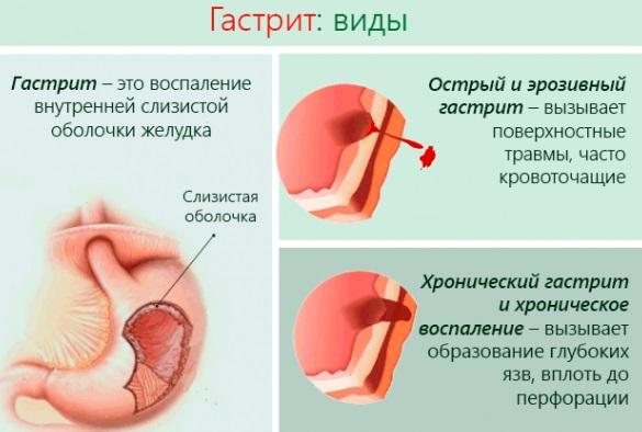 a magas vérnyomás tünetei különböző nyomást gyakorolnak a kézre)