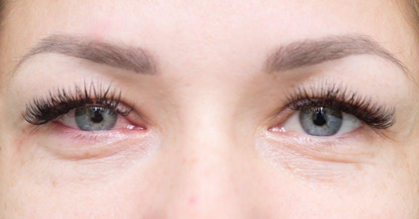 táskák a szem alatt magas vérnyomás