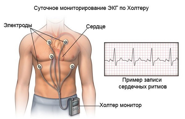 magas vérnyomás nyomásnapló)