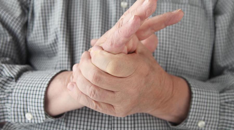 Köszvény (arthritis urica)