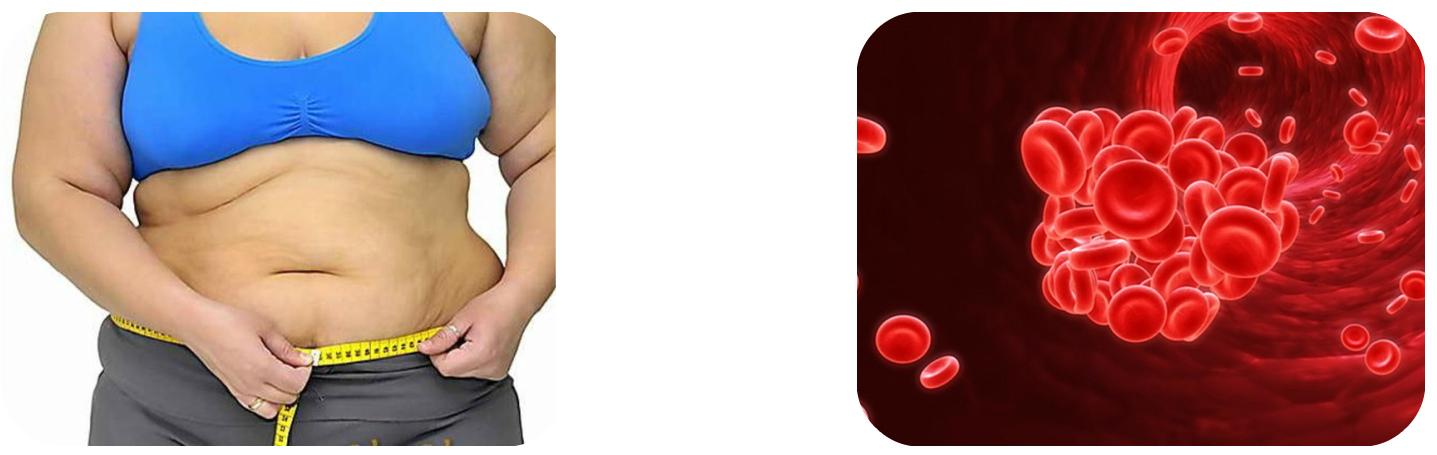 hipodinámia magas vérnyomás hogyan lehet megtudni hogy magas vérnyomásom van