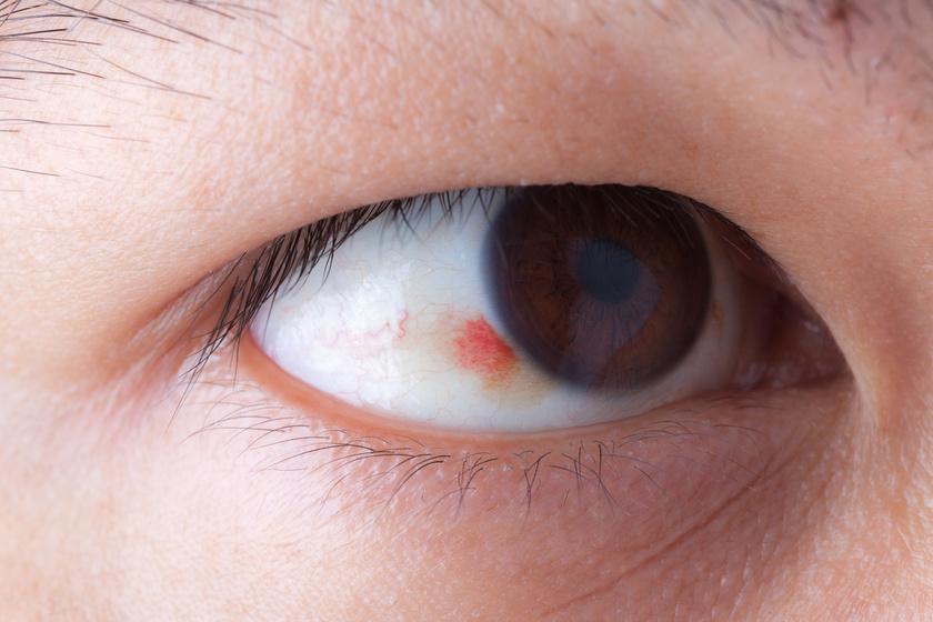 fájó szemek magas vérnyomás lehetséges-e babot enni magas vérnyomásban
