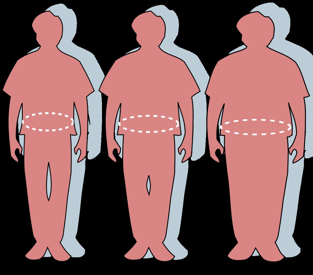 a magas vérnyomás és a túlsúly közötti kapcsolat A WHO adatai a magas vérnyomás magas vérnyomásáról