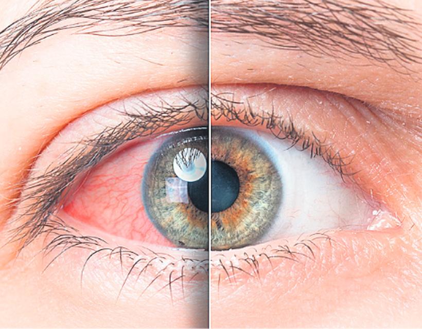 magas vérnyomású szem vérzéses kezelése)