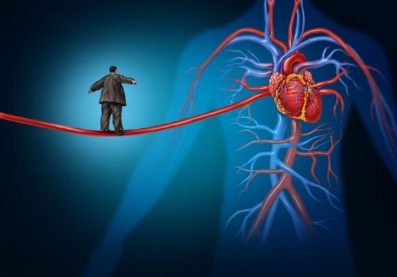 Melyek a leggyakoribb kardiológiai betegségek?