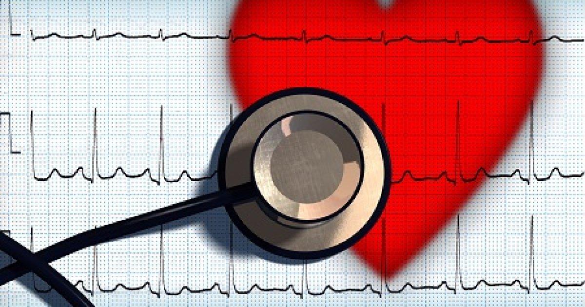 mit mutat az EKG magas vérnyomásban mi az 1 stádiumú magas vérnyomás
