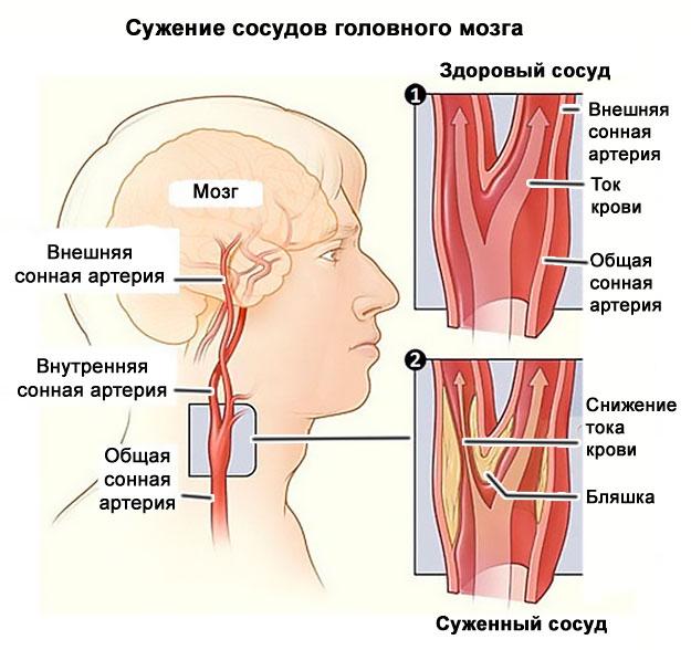 osteochondrosis és hipertónia kapcsolat)