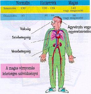 milyen gyógyszereket használjon magas vérnyomás esetén)