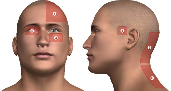 ahol a fej magas vérnyomás miatt fáj magas vérnyomás és endocarditis