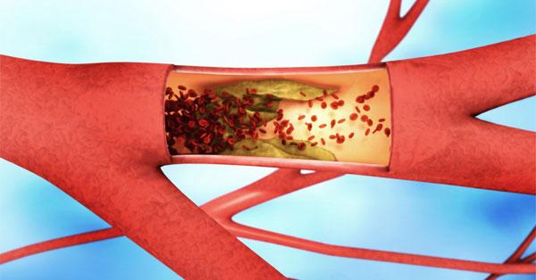 magas vérnyomás és vérrögök