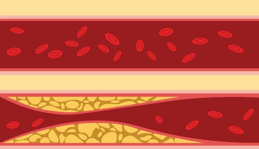 magas vérnyomás és vérengedés