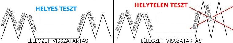 lélegzetvisszatartás magas vérnyomás)