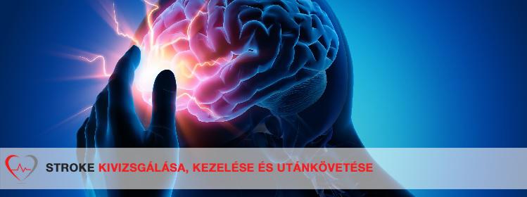 Pitvarfibrillációról és stroke-ról közérthetően - hegyisportclub.hu - Stroke és pitvarfibrilláció