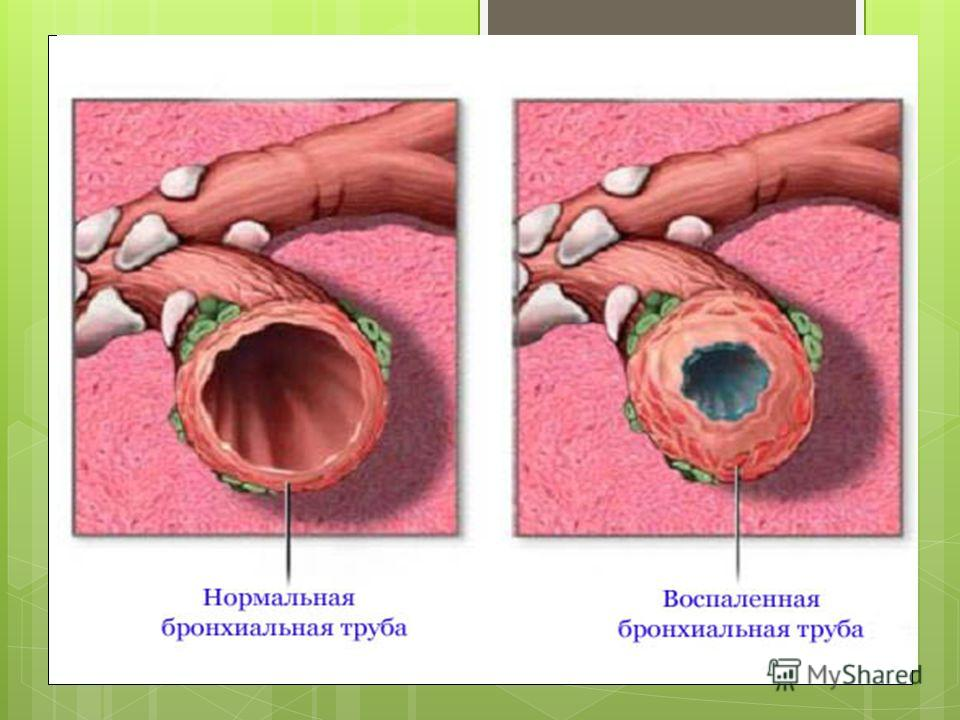 Krónikus obstruktív légúti betegség