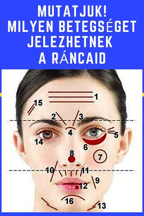 akupunktúra a hipertónia arcán)