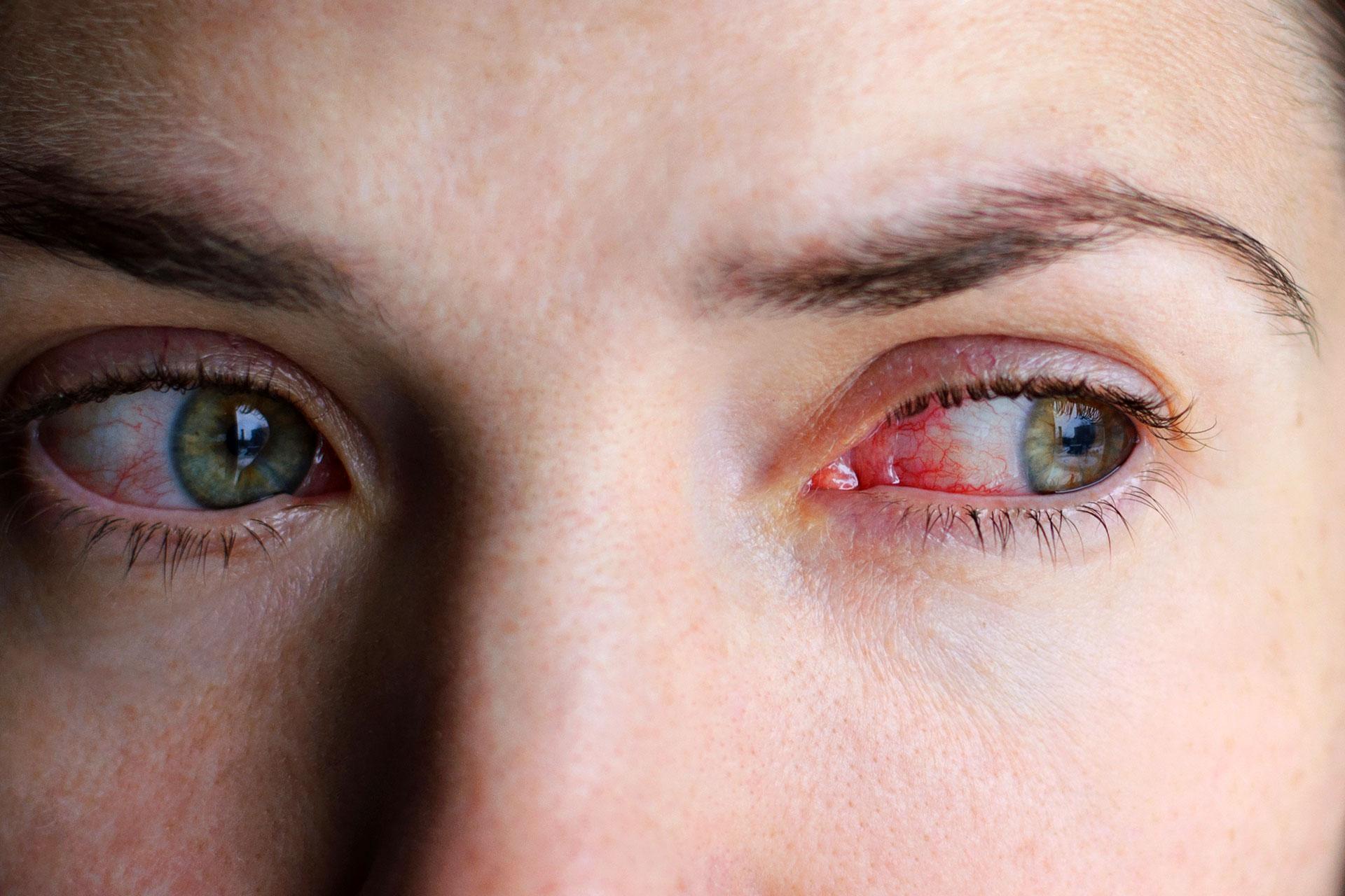 táskák a szem alatt magas vérnyomás)