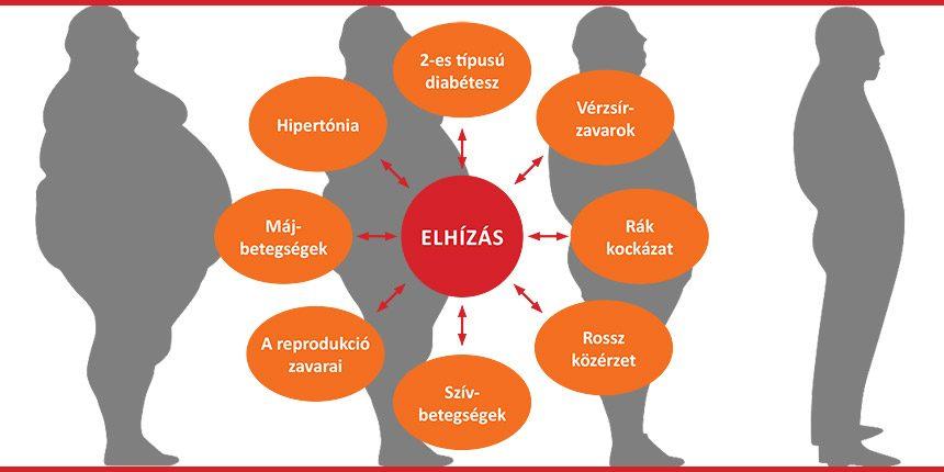 magas vérnyomás és elhízás)