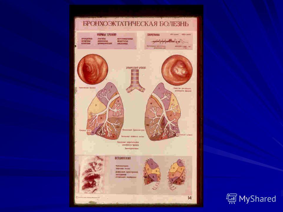 magas vérnyomás hogyan kell kezelni egy férfit magas vérnyomás elleni légszomj elleni gyógyszer