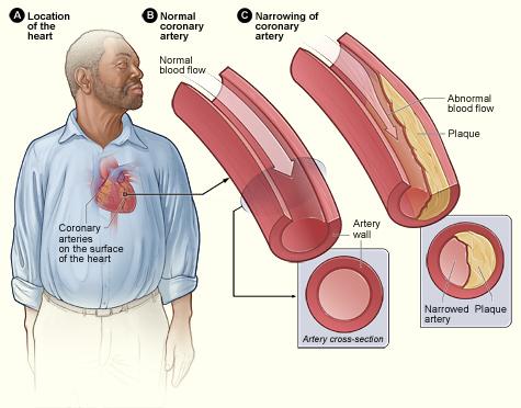 magas vérnyomás és koleszterin mit kell tenni)