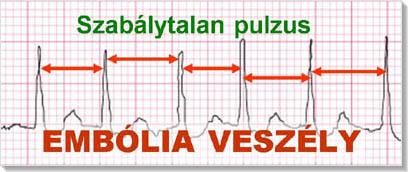 szívritmuszavarok és magas vérnyomás)