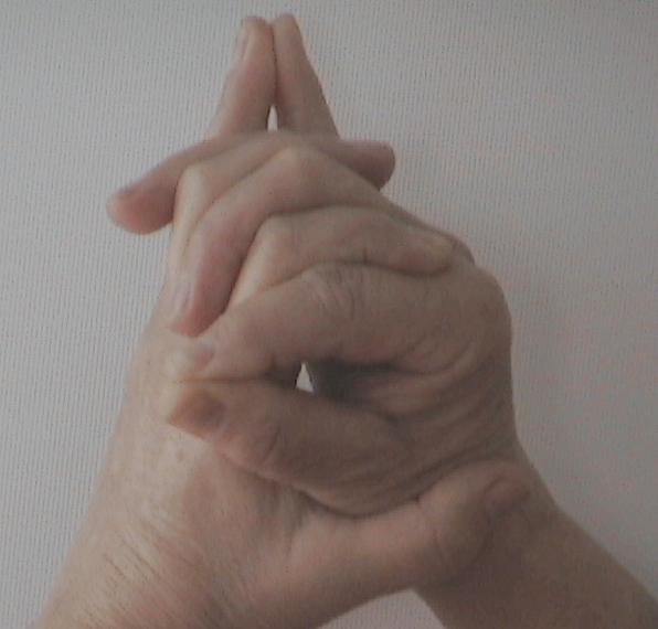 relaxáció és magas vérnyomás lehetséges-e kocogni hipertóniával
