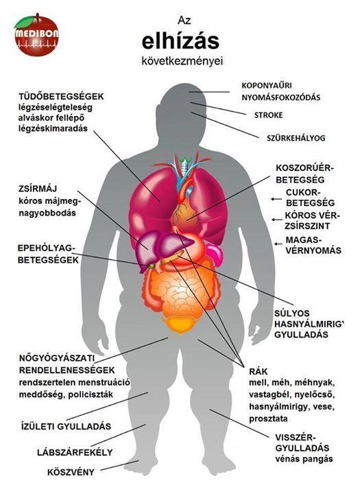 magas vérnyomás köszvény és diabetes mellitus)