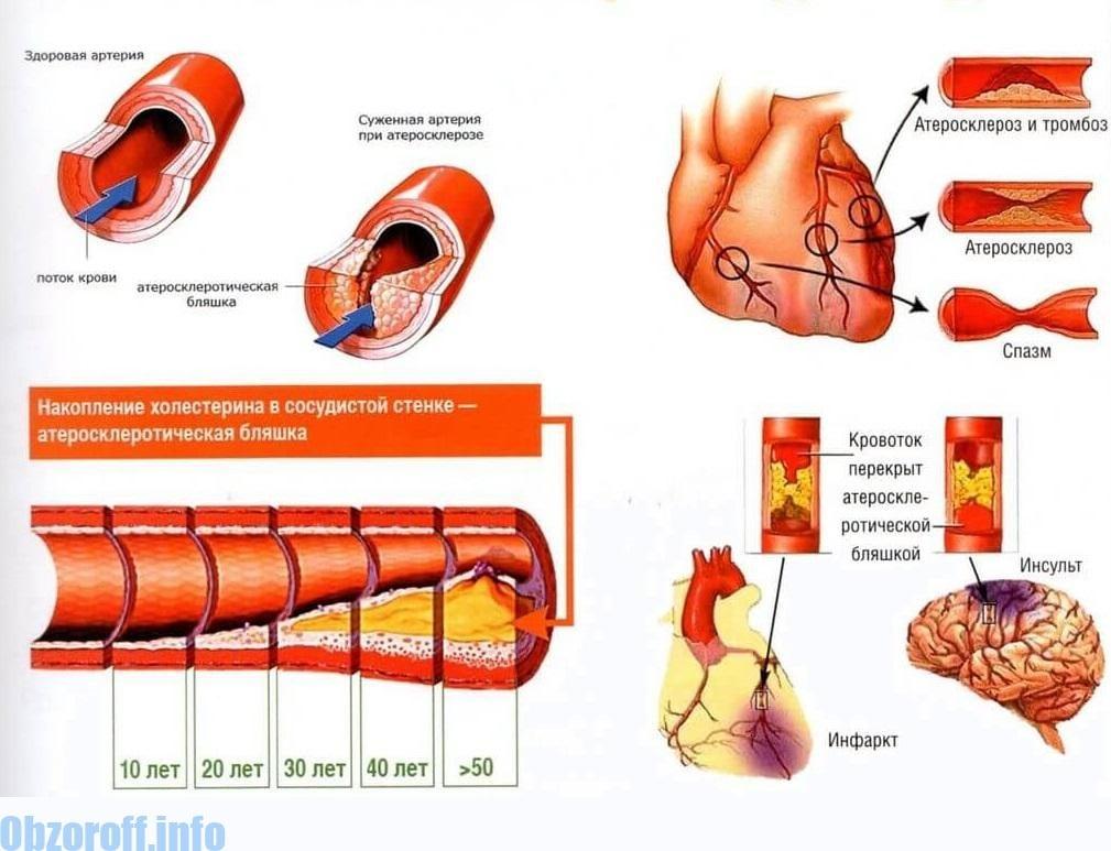 magas vérnyomás kezelése atenolollal)