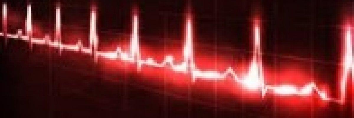 A szív cardiogramjának értelmezése