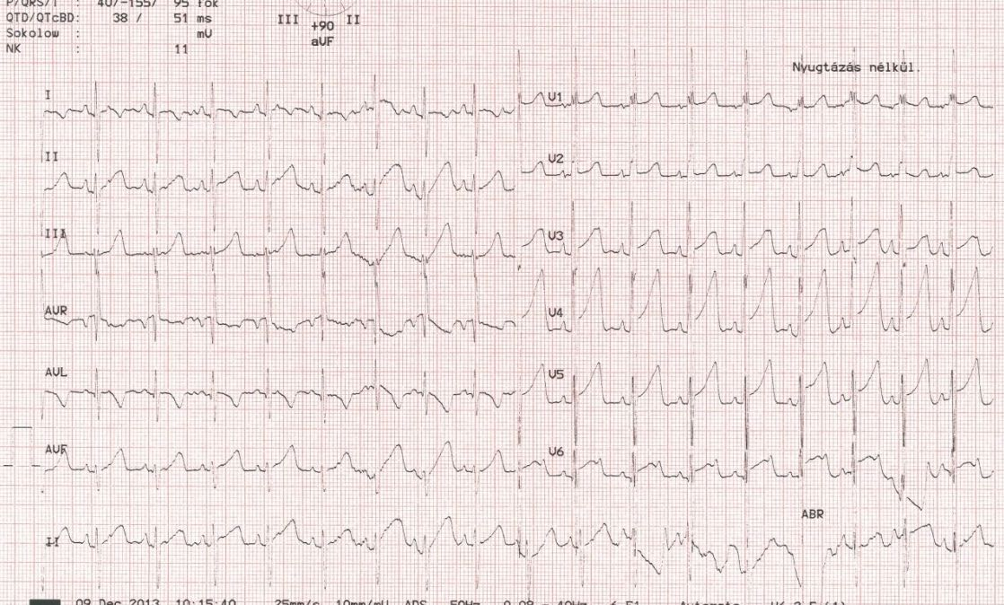 Tachycardia magas vérnyomás