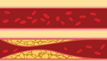 a magas vérnyomás szakaszairól magas vérnyomás 17 évesen