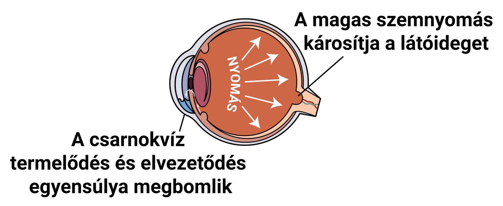 magas vérnyomás szemnyomás)