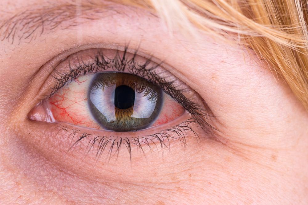 Látásromlást is okozhat a magas vérnyomás - HáziPatika