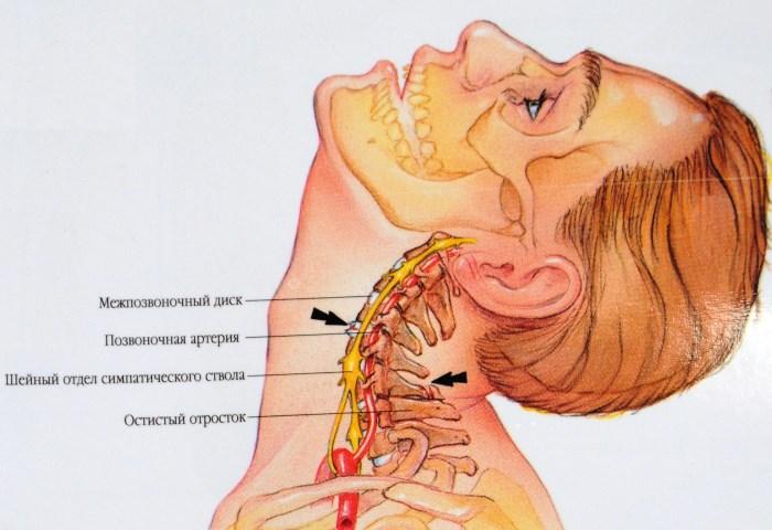 hipertóniával járó osteochondrosis)