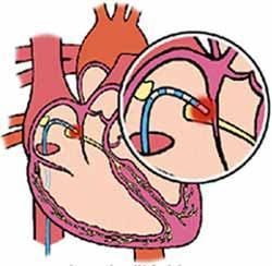 szívritmuszavar műtétre