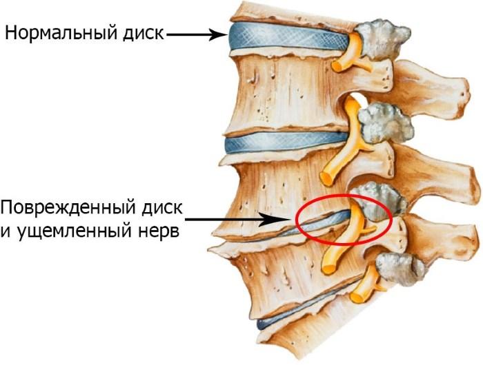 hipertóniával járó osteochondrosis