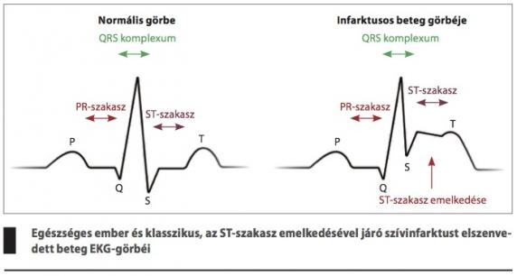 a második szakasz második fokú magas vérnyomása