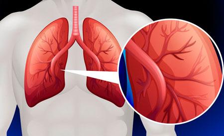 Pulmonális hipertónia 1, 2 fok - kezelés, tünetek és prognózis - Impulzus