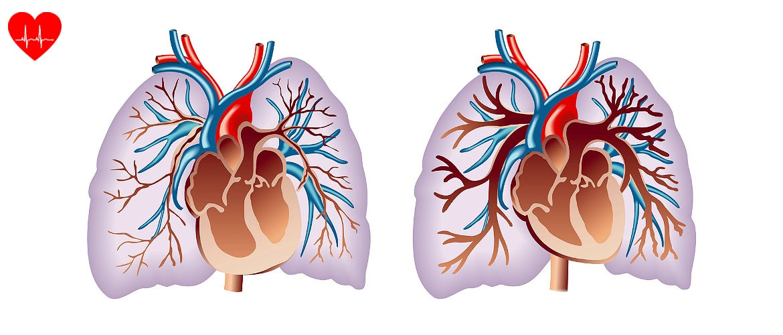 magas vérnyomás 2 fokos autóvezetés)