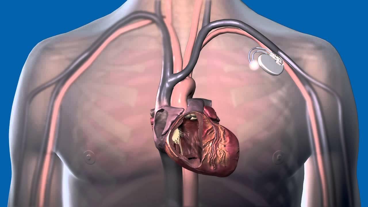 magas vérnyomás 1 fokozat 3 fokú kockázat 1 magas vérnyomás 1 fokozat 1 fokú kockázat