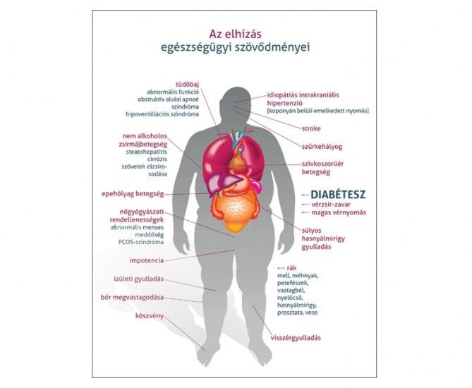 elhízás cukorbetegség magas vérnyomás)