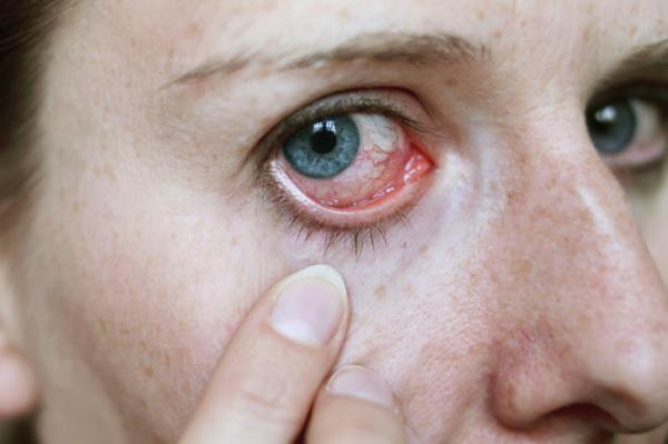 szem és a magas vérnyomás milyen hipertónia elleni gyógyszereket lehet a legjobban bevenni