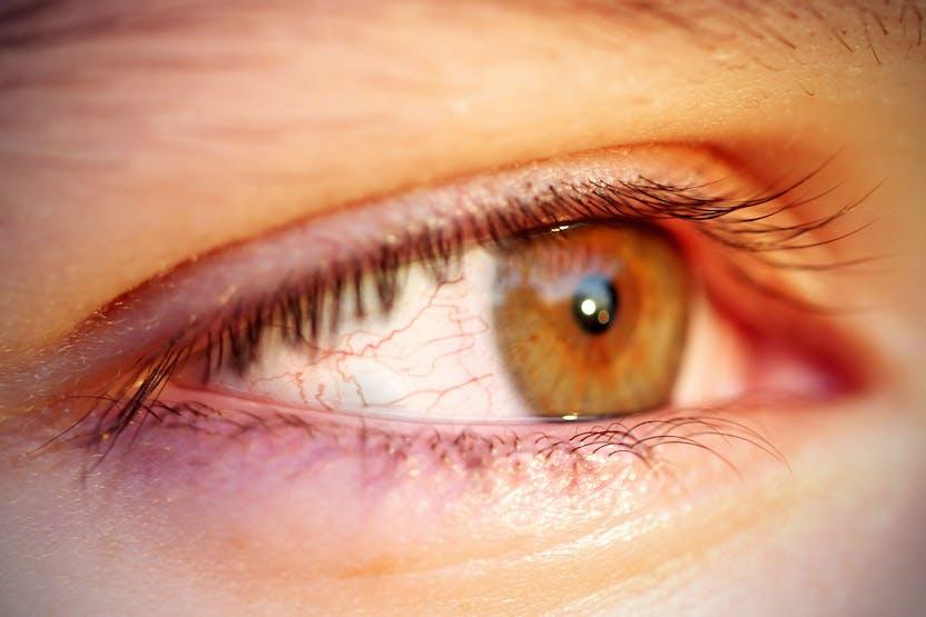 Milyen betegséget jelez a táskás, duzzadt szem? - Egészség   Femina