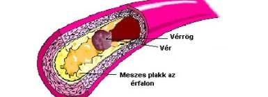 A magas koleszterinszint látható jelei - HáziPatika