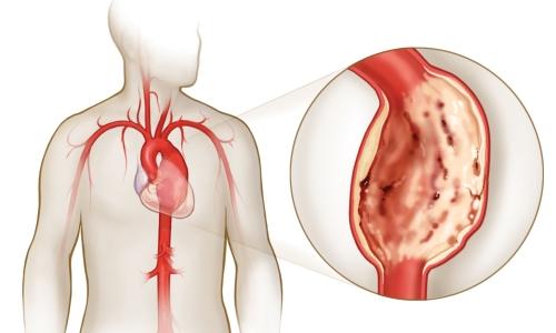 hipodinámia magas vérnyomás magas vérnyomású bőr