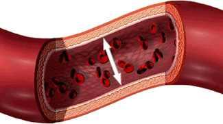 a hipertónia okozta fogyatékosság mi provokálja a magas vérnyomást