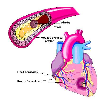 koleszterin hipertónia esetén