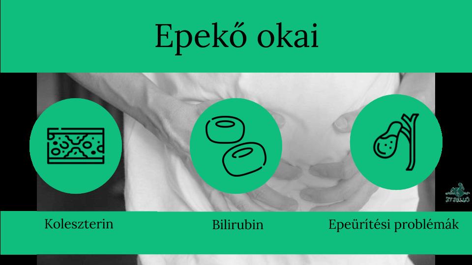 Epekő műtét, epehólyag eltávolítás, epehólyag műtét