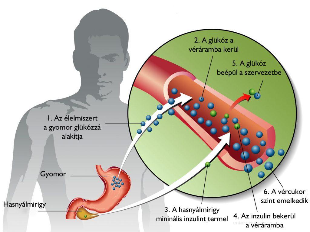 magas vérnyomás kezelése 2-es típusú cukorbetegség kezelésében